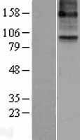 NBL1-07482 - 15 Lipoxygenase 2 Lysate