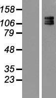 NBL1-13578 - 160kDa Neurofilament Medium Lysate