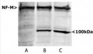 NB300-222 - Neurofilament  M (160 kD)