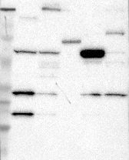 16770002 - Versican core protein / VCAN