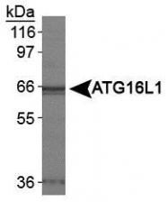 NB110-82384 - APG16L / ATG16L1