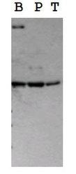 19510002 - Serotonin receptor 2B (HTR2B)