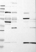 20590002 - Cytohesin 2