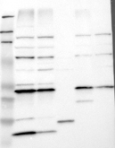 21200002 - VAMP-associated protein B/C (VAPB)