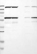 21580002 - Nuclear protein NP60 / N-PAC