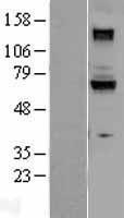 NBL1-11408 - Guanylyl Cyclase beta 1 Lysate