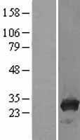 NBL1-17222 - TPMT Lysate