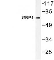 NBP1-00844 - GTP-binding protein 1 / GBP1