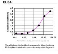 24450002 - Mannan Binding Protein