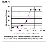 25440002 - Alpha-fetoprotein / AFP
