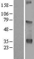 NBL1-17819 - WDR54 Lysate