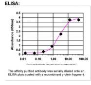 26240002 - Placenta growth factor / PGF