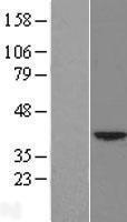 NBL1-11738 - HSF2BP Lysate