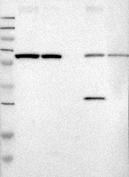 27500002 - Ribophorin-2 / RPN2