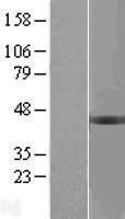 NBL1-07944 - BCKDHB Lysate