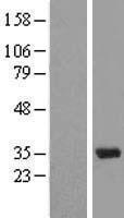 NBL1-16285 - U1A Lysate
