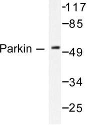 NB100-91921 - PARK2 / Parkin