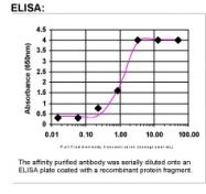 29840002 - Plastin 2 / LCP1