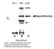 NB300-155 - Neurofibromin