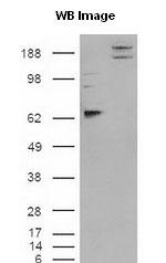 NB300-186 - CADM1 / SYNCAM