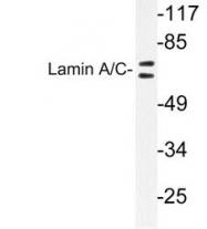 NB100-92078 - Lamin-A/C (LMNA)