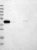 32250002 - Neuronal pentraxin-2