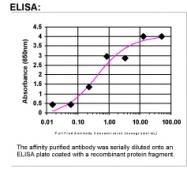 33190002 - Coagulation factor XIIIa (F13A1)