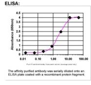 33200002 - Coagulation factor XIIIa (F13A1)