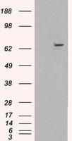 NBP1-06035 - XRCC9 / FANCG