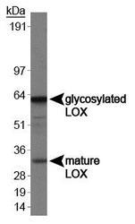 NB100-2527 - Lysyl oxidase