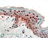NB100-2465 - 14-3-3 protein sigma / SFN