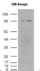 NB400-157 - NR1H2 + NR1H3