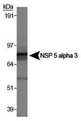 NB100-518 - NSP5