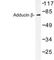 NBP1-19700 - Beta-adducin (ADD2)