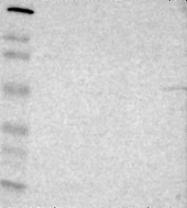 NBP1-90317 - Serotonin receptor 2C (HTR2C)