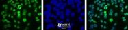 NB100-116 - APEX1 / REF-1