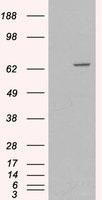 NB300-949 - Myotubularin / MTM1