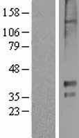 NBL1-11777 - 5HT1E Receptor Lysate