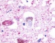 NLS655 - Serotonin receptor 4 / HTR4