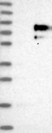 NBP1-90315 - Trophoblast glycoprotein (TPBG)
