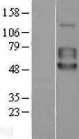 NBL1-17210 - 5T4 Lysate