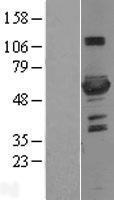 NBL1-14312 - 6 Phosphofructo 2 Kinase Lysate