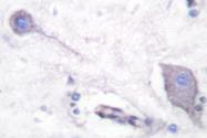 NB100-91961 - CD172a / SIRPA