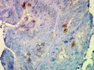 NB110-96871 - Endoplasmin / HSP90B1 / TRA1