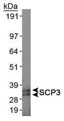 NB300-232 - SYCP3 / SCP3