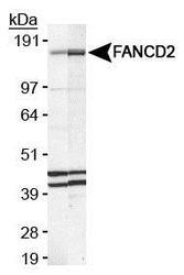 NB100-316 - FANCD2