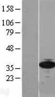 NBL1-15578 - 67kDa Laminin Receptor Lysate