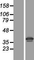 NBL1-15579 - 67kDa Laminin Receptor Lysate