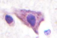 NBP1-00899 - KCNJ16
