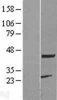 NBL1-12136 - KCMF1 Lysate